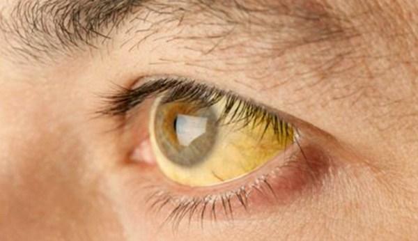 SP registra primeiro caso de febre amarela contraída na zona sul da cidade