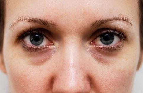 Alimentares por alergias olheiras causadas