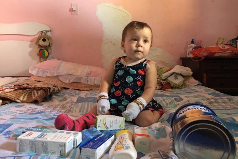Família de bebê com doença de pele rara pede ajuda para tratamento