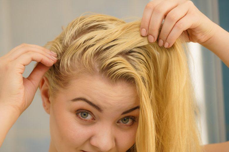 Como acabar com a oleosidade do cabelo: dicas fáceis e práticas para evitar o problema nos fios