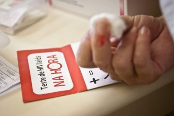 Ministério da Saúde: 135 mil convivem com HIV no país e não sabem