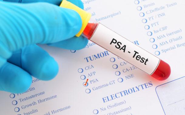 Mutirão em Itabira terá exames de sangue que identificam câncer de próstata - DeFato Online