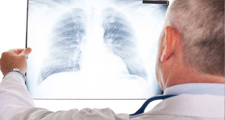 Pneumonia é a principal causa de morte em crianças menores de cinco anos em todo o mundo