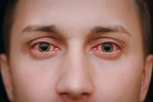 Verão aumenta a síndrome do olho vermelho