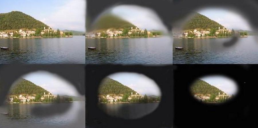 Glaucoma-o-que-e-quais-os-riscos-e-como-prevenir (1)