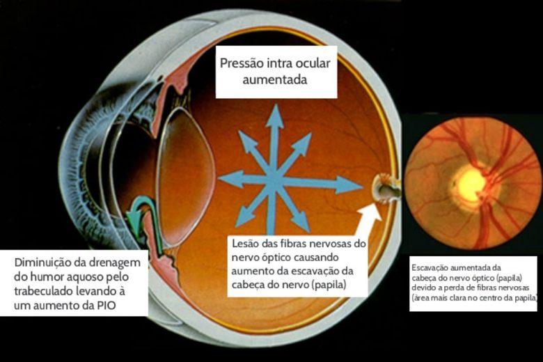Glaucoma: o que é, quais os riscos e como prevenir?