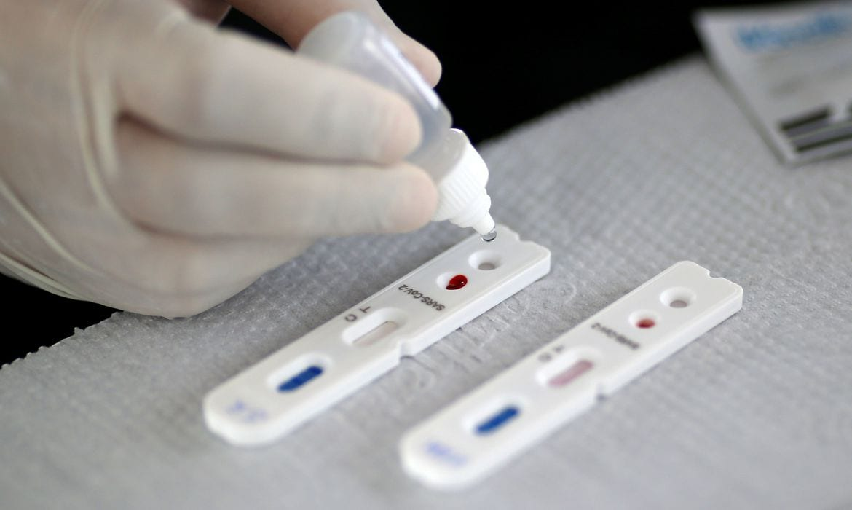 Coronavírus: Brasil tem 363 mil casos confirmados e 22 mil mortes