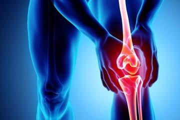 Entenda a osteoartrose